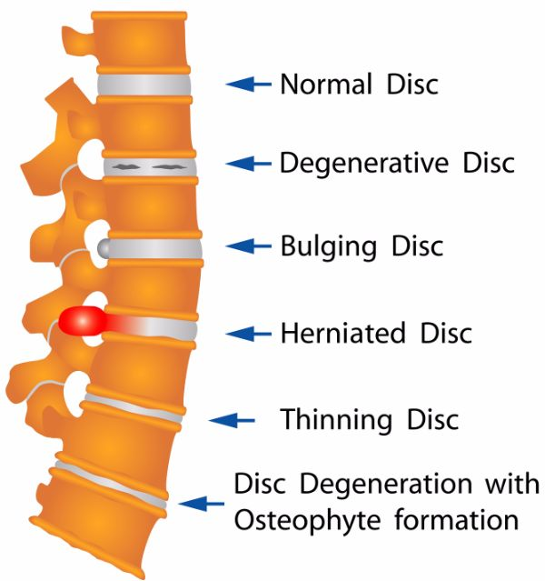 different stages of disc degenertion